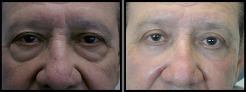 upper and lower eyelids blepharoplasty before and after patient image with more refreshed look
