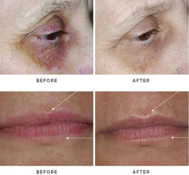 eye lip before after