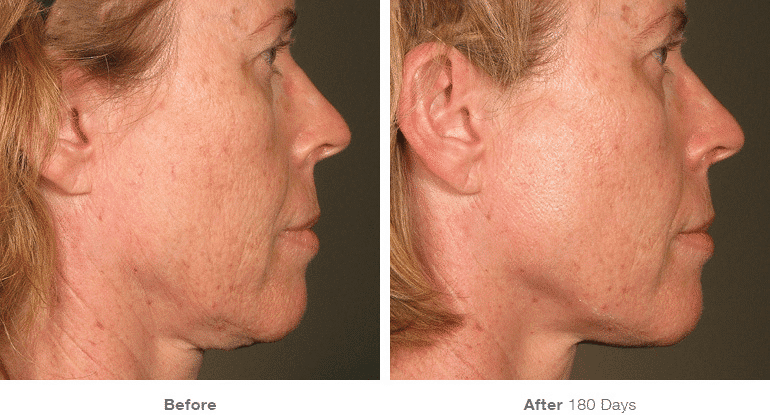 Ultherapy, Face Lift, Non-surgical