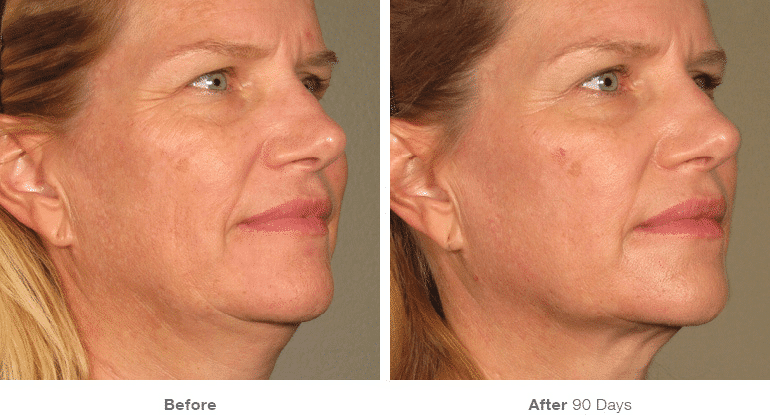 Ultherapy, Face Lift, Non-surgical Lift