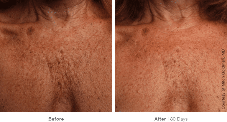 Ultherapy, Face Lift, Non-surgical Lift, Chest