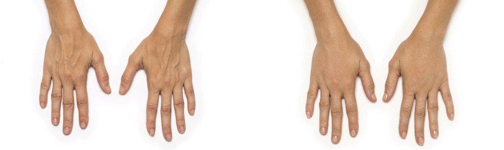 radiesse hands patient gabriela