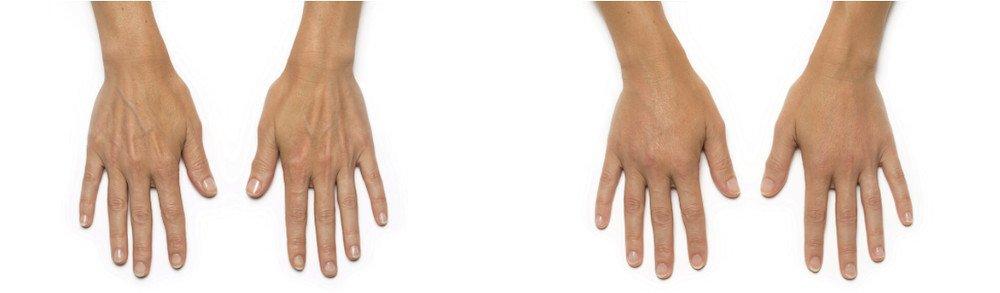 radiesse hands patient karin