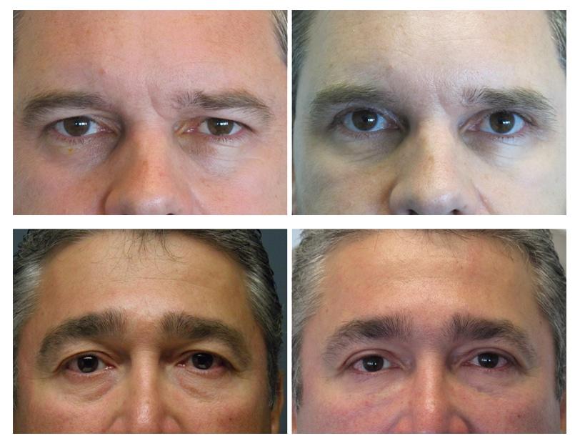 Blepharoplasty For Men