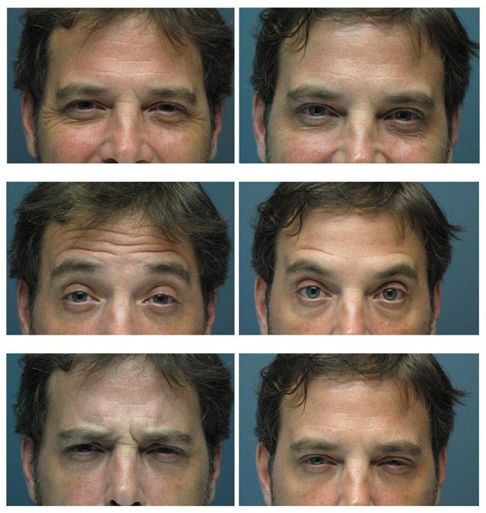 Botox For Men 3