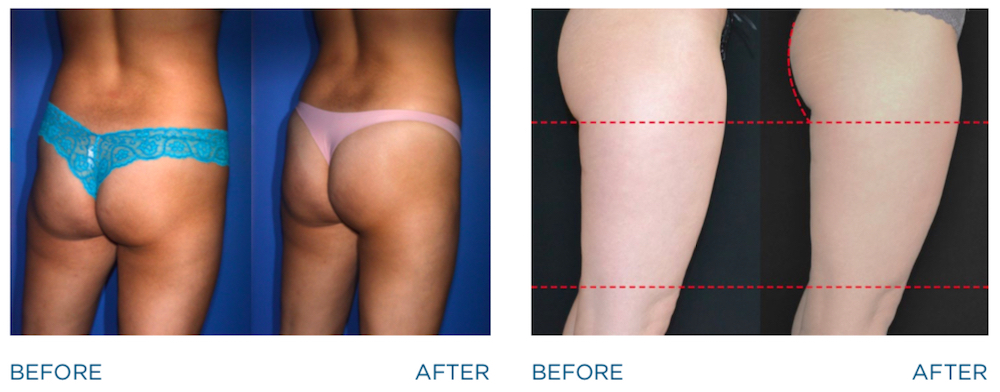 emsculpt before and after image of woman's butt lift
