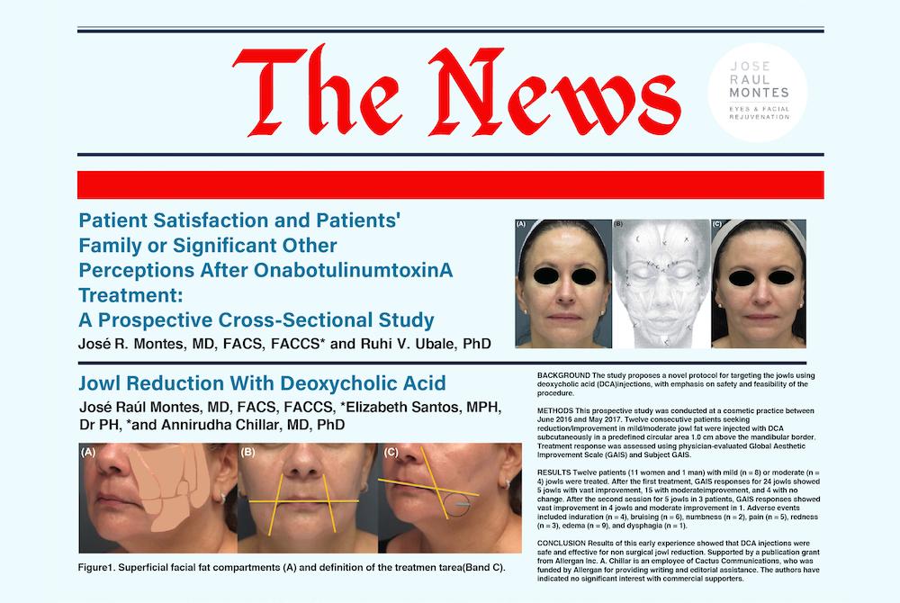 botox satisfaction jowl reduction dca header