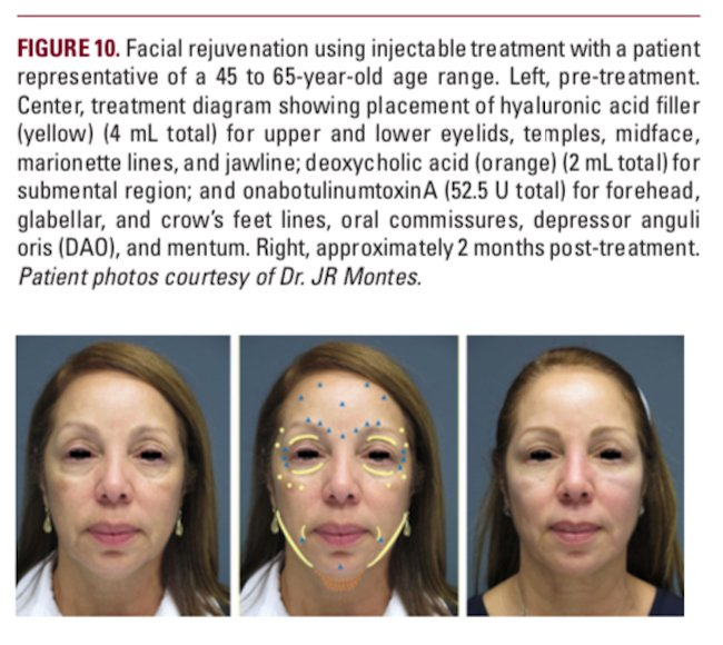 understanding the female hispanic and latino american facial aesthetic patient header figure 10