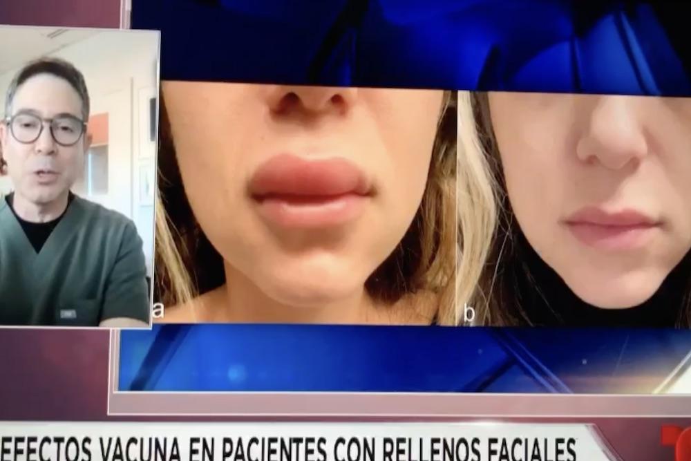 vacuna para covid y su efecto en personas con inyectables faciales