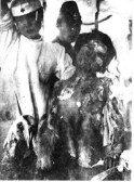 hiroshima-burn-victim-war-crime[1]