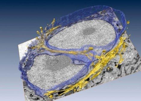 Filamentos intranucleares de una célula humana