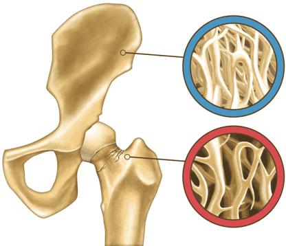 Cadera osteoporosis