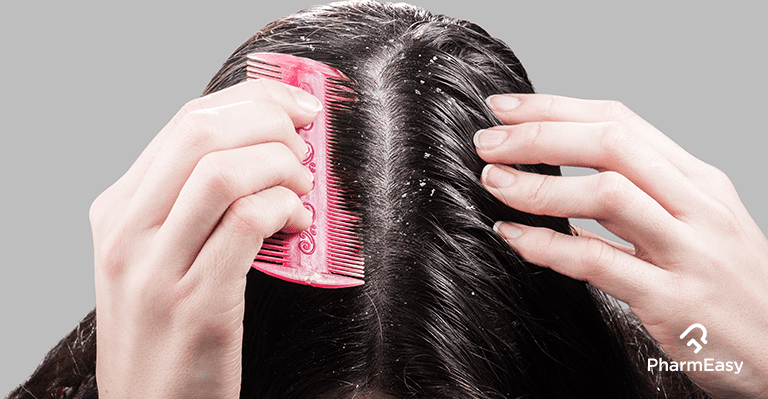 How To Get Rid of Dandruff for a Man