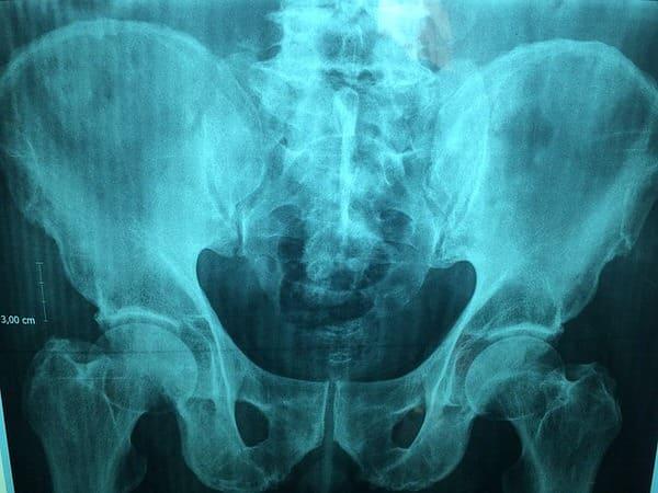 osteoporosis+pelvis-x-ray