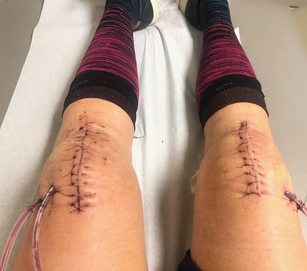 kneecap replacement