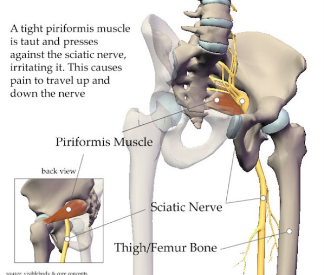 This Hidden Muscle Is The Real Reason For Sciatica Pains And Many Doctors Do Not Even Know About It