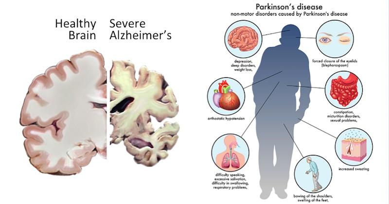 AD and PD Parkinson Alzheimer Hakkında