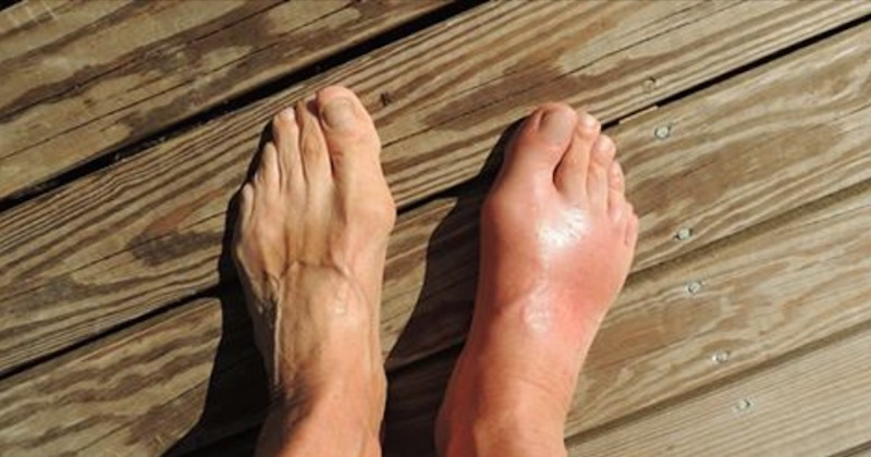 gout and arthritis