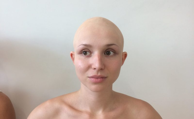 Bald Cap With Hair Beauty Within Clinic