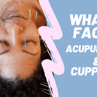 Wild Beauty: What is Facial Acupuncture & Cupping?!