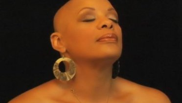 What Everybody Ought to Know About Alopecia | June's Journal image 6