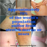 Stretch mark scar Collage forever living products
