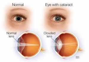 Cataract Symptoms Natural Treatments That Improved eye Vision