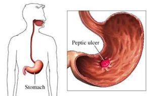 Natural Ulcers Care Treatment - Permanently Heal Your Stomach Ulcer