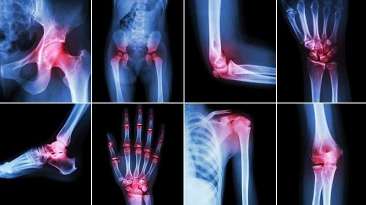arthritis pain feels like 722x406