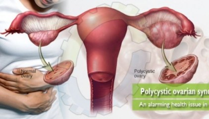 Natural Treatment for Polycystic Ovarian Syndrome, Cause