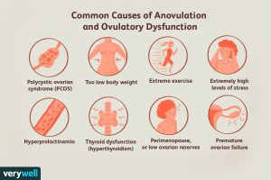 Anovulation and Ovulatory Dysfunction and Symptoms and Treatments
