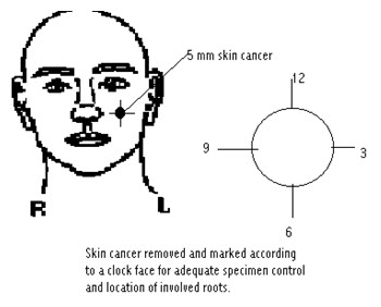 mohs-skin-cancer-surgery