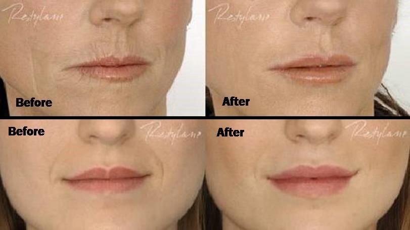 dermal-filler-before-after-pictures