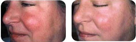 ipl-photo-facial