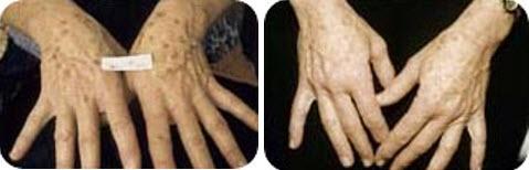 ipl-photofacial-hands