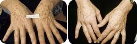 ipl-photofacial-hands