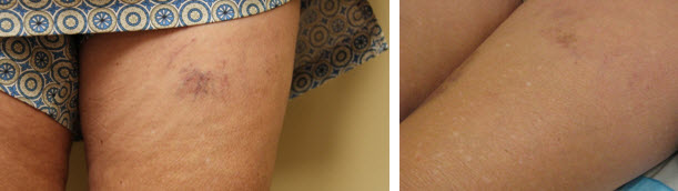 sclerotherapy-before-after-picture