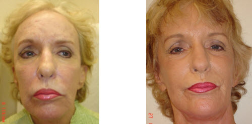 sculptra-before-after-picture-jupiter-dermatology