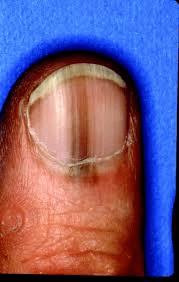 melanoma-nail