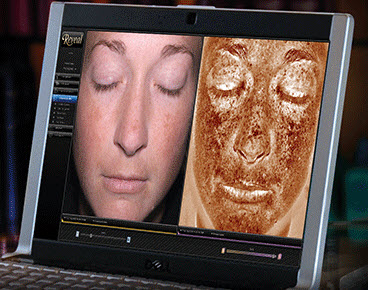 facial-analyzer