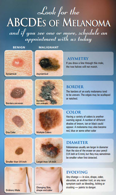 melanoma-symptoms