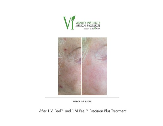 vi-peel-face-before-after