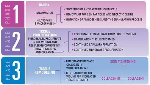 Micro-Needling-Jupiter-Dermatology
