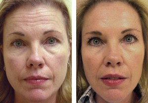 botox before and after jupiter fl
