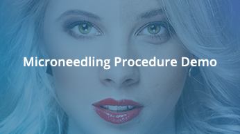 Micro-Needling Procedure Demo