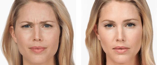 jupiter botox results