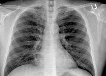 Un medic din Iași susține că boala provocată de virusul SARS CoV-2 ar putea fi cronică 5