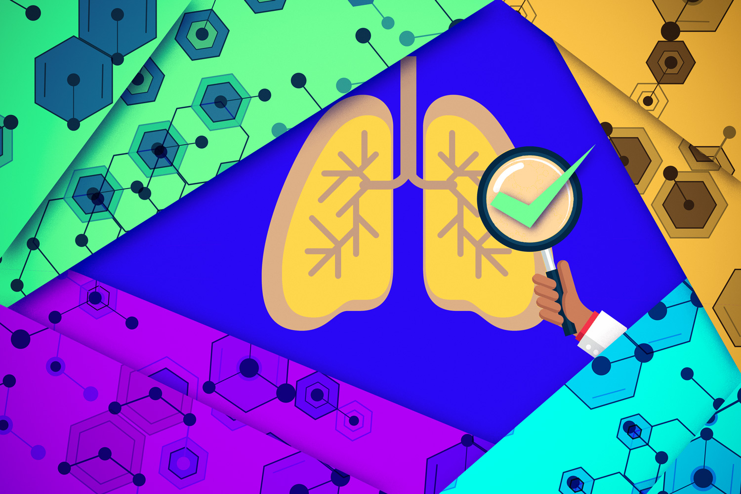 Machine learning uncovers potential new TB drugs – MIT News
