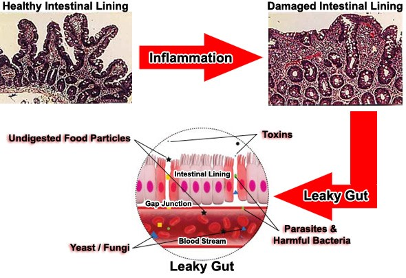 leaky gut and inflammation