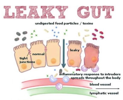 leaky gut issues